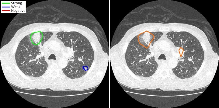 On the left, Radiologist labels of a fungal pneumonia lesion on a CT scan; on the right, machine labels generated using FungalAI™